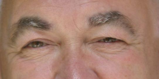Gesichtshaut des Autors